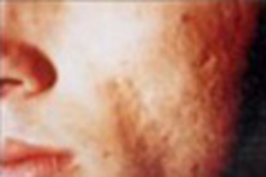 Acne Treatment Acne Scarring Treatment Skin Medical