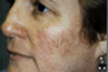 Facial Thread Veins