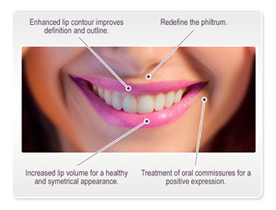 Juvederm Ultra Smile Dermal Fillers Skin Medical