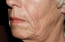 Sculptra Anti-ageing before