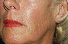 Sculptra Anti-ageing after