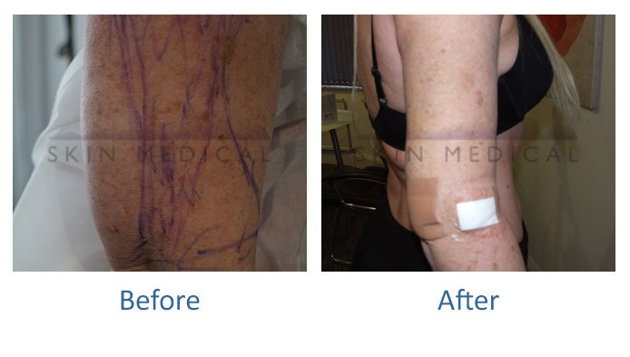 Vaser Lipo For Arms | Vaser Lipo | Skin Medical Manchester