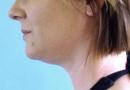 vaser-neckandface01