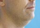 vaser-neckandface02