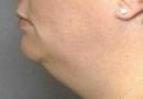 vaser-neckandface03