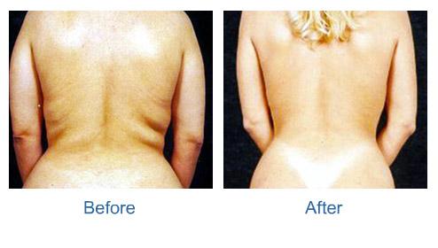 Garcinia evolution slimming