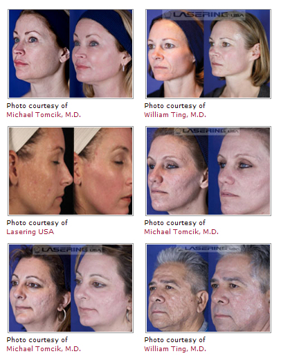 mixto-laser-before-after-photos