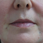Patient 1 Hour After Thread Lift