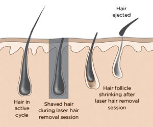 hair removal pic blog