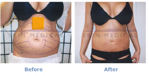 before and after stomach